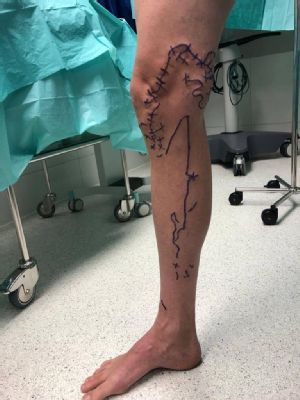 V AGEL Clinic operujú kŕčové žily najmodernejšou metódou